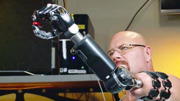 This Man Controls His Prosthetic Arm With His Thoughts